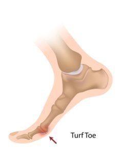 16911809 - turf toe