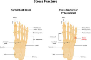 43128600 - stress fracture
