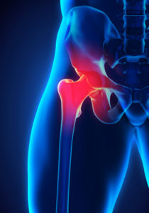 51987110 - painful hip joint